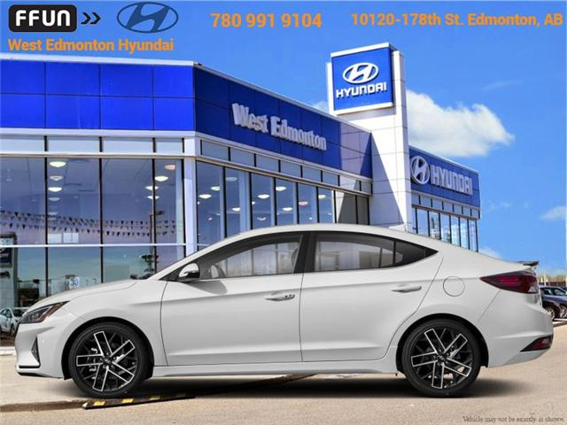 2019 Hyundai Elantra Sport (Stk: EL93225) in Edmonton - Image 1 of 1