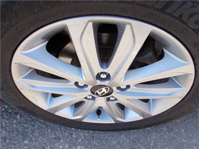 2016 Hyundai Elantra Sport Appearance (Stk: B1993) in Prince Albert - Image 21 of 22