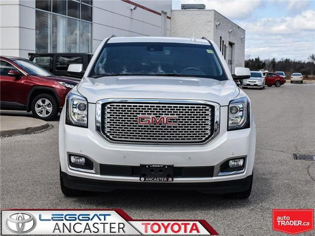 2017 GMC Yukon XL Denali (Stk: 3776) in Ancaster - Image 2 of 25