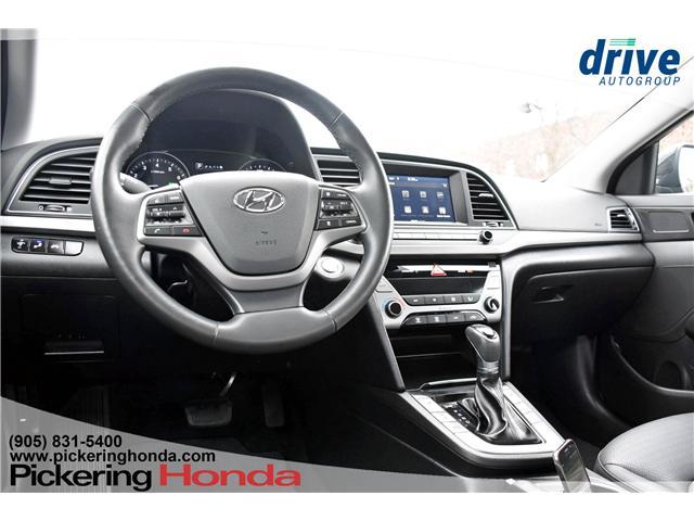 2018 Hyundai Elantra GLS (Stk: PR1123) in Pickering - Image 2 of 29