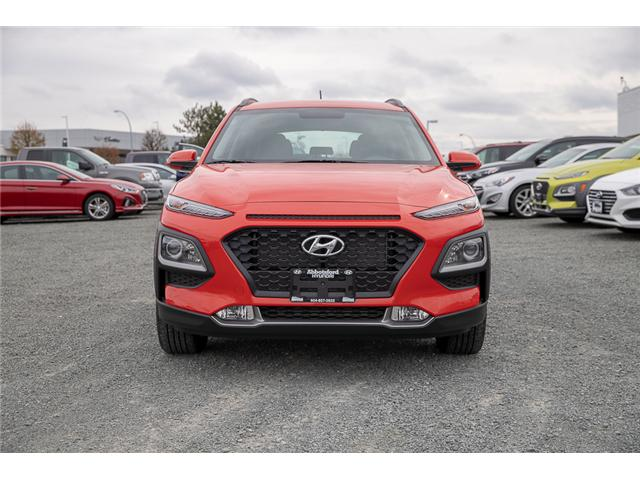 2019 Hyundai KONA 2.0L Preferred (Stk: KK328230) in Abbotsford - Image 2 of 30