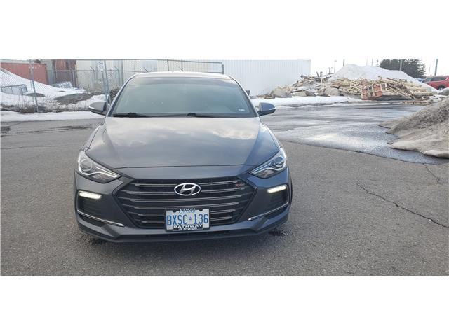 2018 Hyundai Elantra Sport (Stk: R85105) in Ottawa - Image 2 of 9