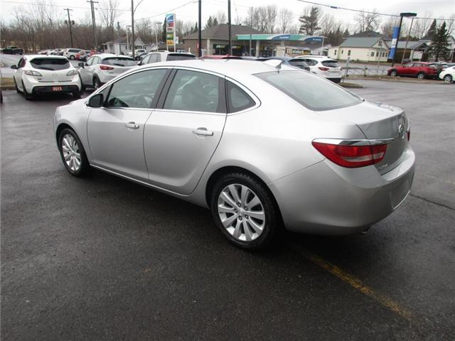 2015 Buick Verano Base (Stk: HM26924A) in Hawkesbury - Image 4 of 9