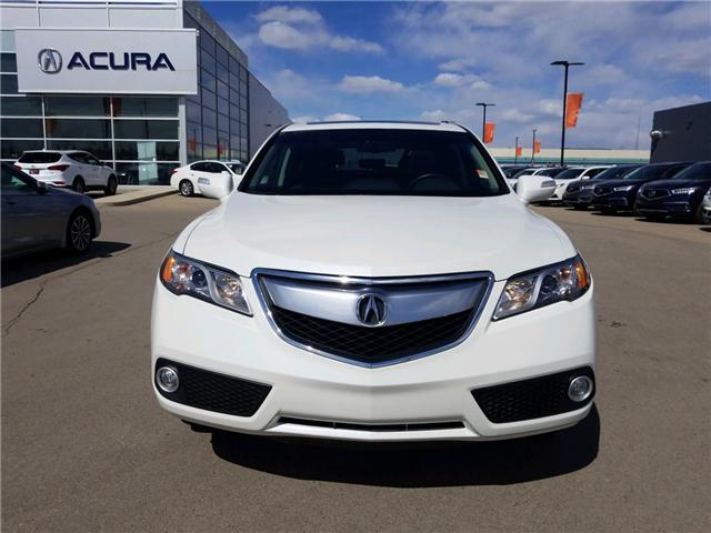 2015 Acura RDX Base (Stk: A3975) in Saskatoon - Image 2 of 25