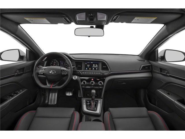 2019 Hyundai Elantra Sport (Stk: KU821326) in Mississauga - Image 5 of 9