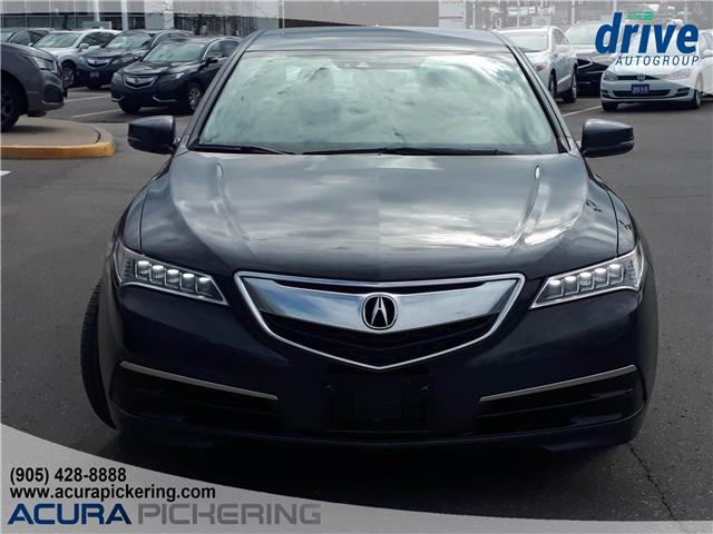 2016 Acura TLX Tech (Stk: AP4830) in Pickering - Image 4 of 32