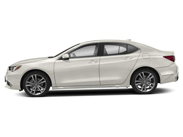 2019 Acura TLX Tech (Stk: AT526) in Pickering - Image 2 of 9