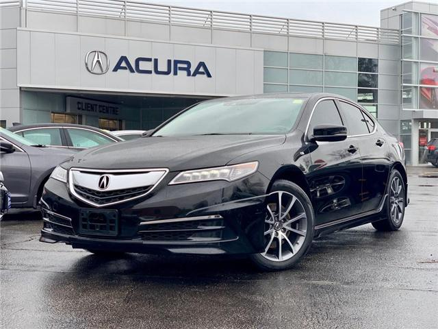 2017 Acura TLX Base (Stk: 3979) in Burlington - Image 1 of 30