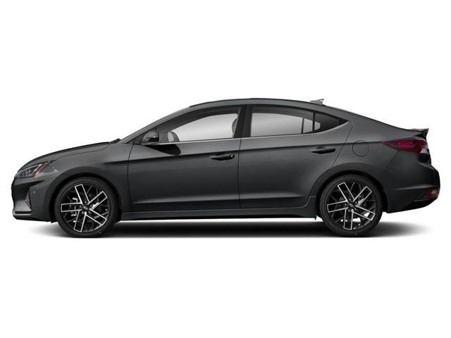 2019 Hyundai Elantra Sport (Stk: 828472) in Milton - Image 2 of 9
