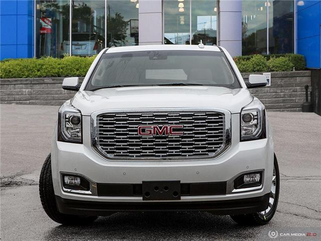 2019 GMC Yukon Denali (Stk: 2953069) in Toronto - Image 2 of 27