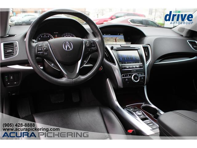 2016 Acura TLX Tech (Stk: AT421A) in Pickering - Image 2 of 25