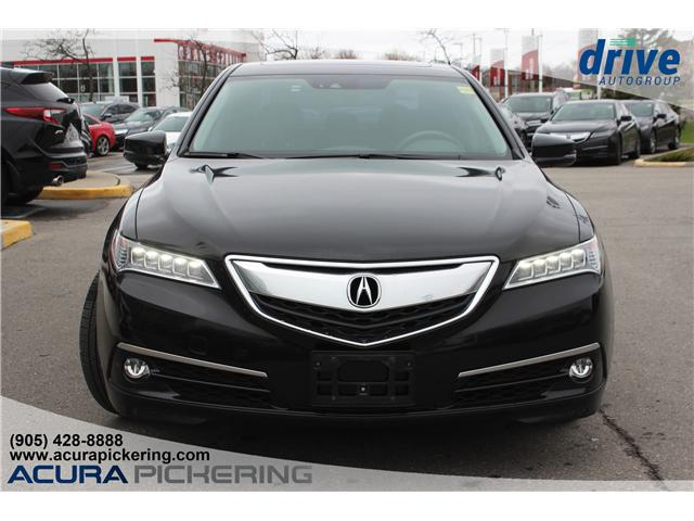 2016 Acura TLX Tech (Stk: AT421A) in Pickering - Image 4 of 25