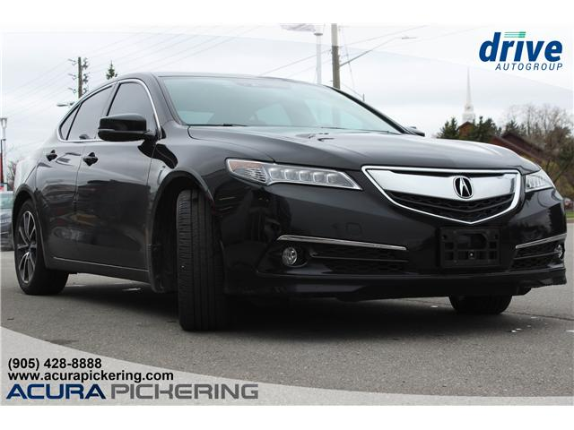 2016 Acura TLX Tech (Stk: AT421A) in Pickering - Image 5 of 25