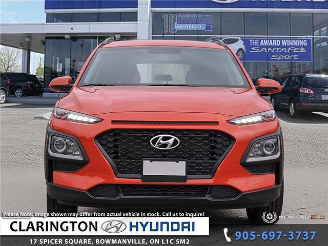 2019 Hyundai KONA 2.0L Essential (Stk: 19270) in Clarington - Image 2 of 24