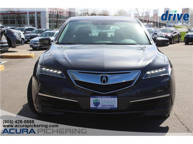 2016 Acura TLX Tech (Stk: AP4837) in Pickering - Image 4 of 33