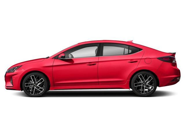 2019 Hyundai Elantra Sport (Stk: H4954) in Toronto - Image 2 of 9