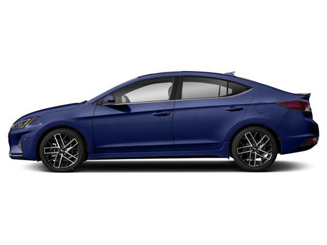 2019 Hyundai Elantra Sport (Stk: 827159) in Whitby - Image 2 of 9