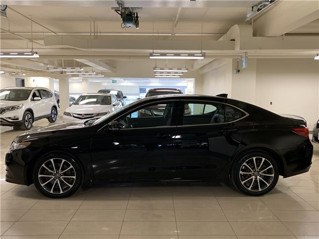 2017 Acura TLX Base (Stk: AP3263) in Toronto - Image 2 of 30