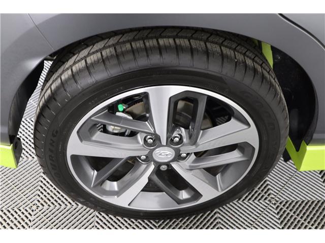 2019 Hyundai KONA 1.6T Ultimate (Stk: 119-156) in Huntsville - Image 10 of 36