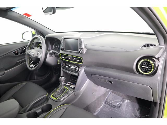 2019 Hyundai KONA 1.6T Ultimate (Stk: 119-156) in Huntsville - Image 15 of 36