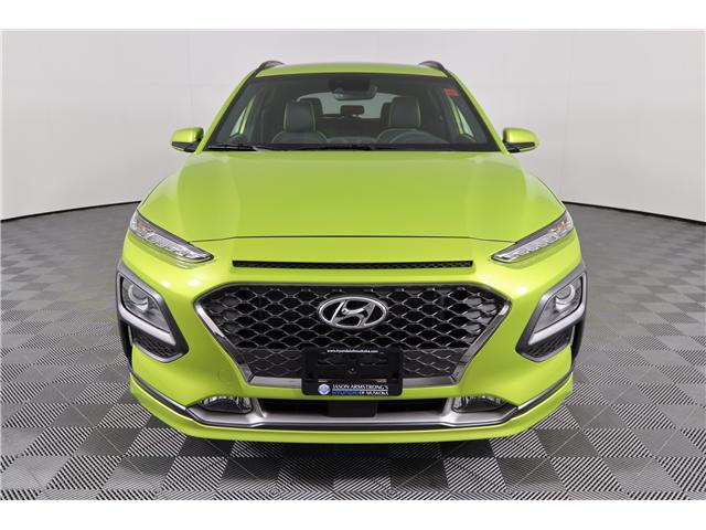 2019 Hyundai KONA 1.6T Ultimate (Stk: 119-156) in Huntsville - Image 2 of 36