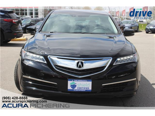 2016 Acura TLX Tech (Stk: AP4847) in Pickering - Image 4 of 32