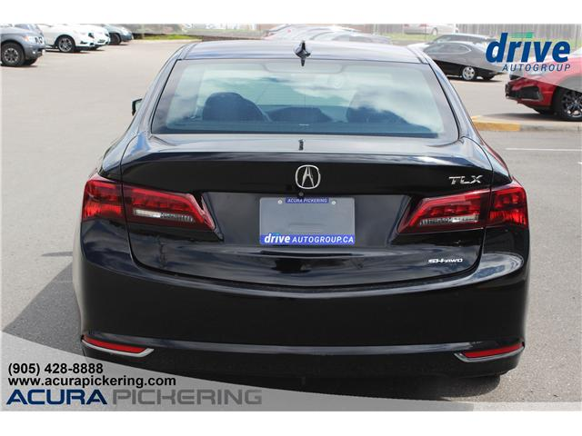 2016 Acura TLX Tech (Stk: AP4847) in Pickering - Image 8 of 32