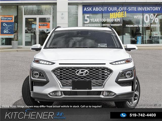 2019 Hyundai Kona 1.6T Ultimate (Stk: 58993) in Kitchener - Image 2 of 23