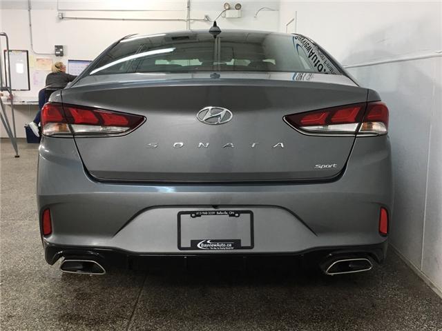 2018 Hyundai Sonata 2.4 Sport (Stk: 34954J) in Belleville - Image 6 of 24