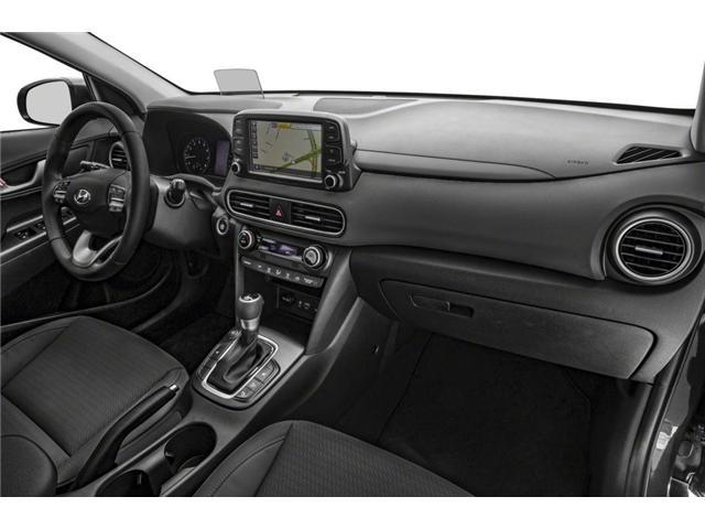 2019 Hyundai Kona 1.6T Trend (Stk: KU364551) in Mississauga - Image 9 of 9