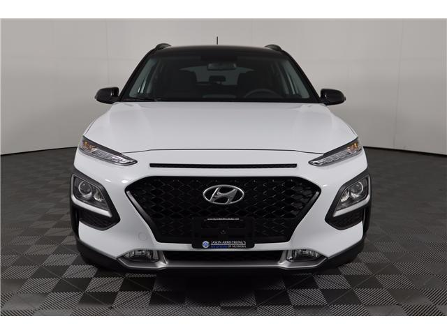 2019 Hyundai Kona 2.0L Preferred (Stk: 119-172) in Huntsville - Image 2 of 29