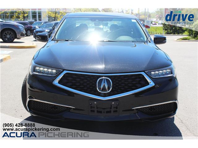2019 Acura TLX Tech (Stk: AT098) in Pickering - Image 4 of 27