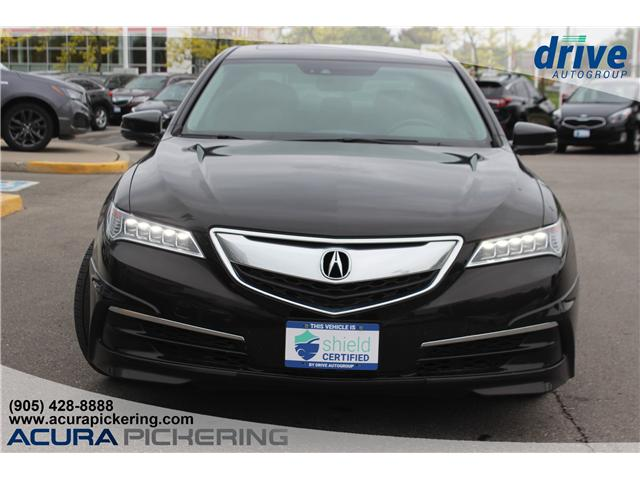 2015 Acura TLX Tech (Stk: AP4880) in Pickering - Image 2 of 15