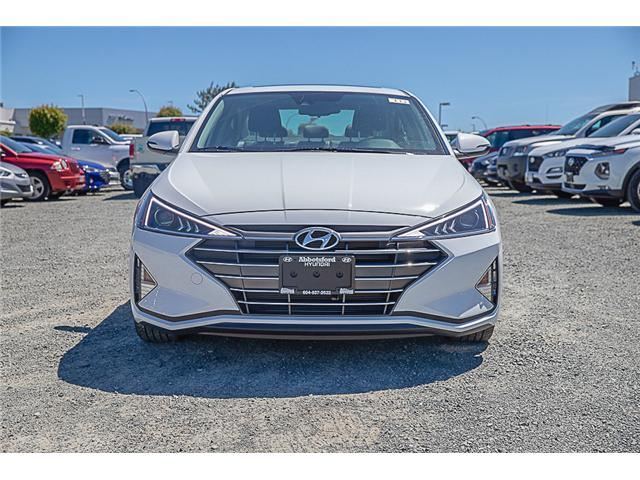 2020 Hyundai Elantra Luxury (Stk: LE917153) in Abbotsford - Image 2 of 28