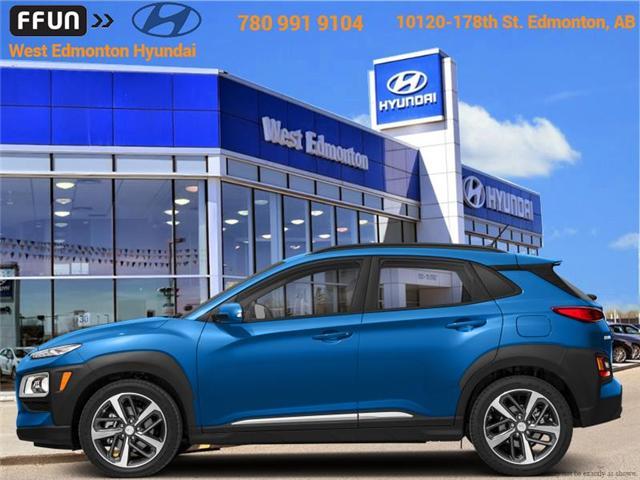 2019 Hyundai KONA 1.6T Trend (Stk: KN99921) in Edmonton - Image 1 of 1