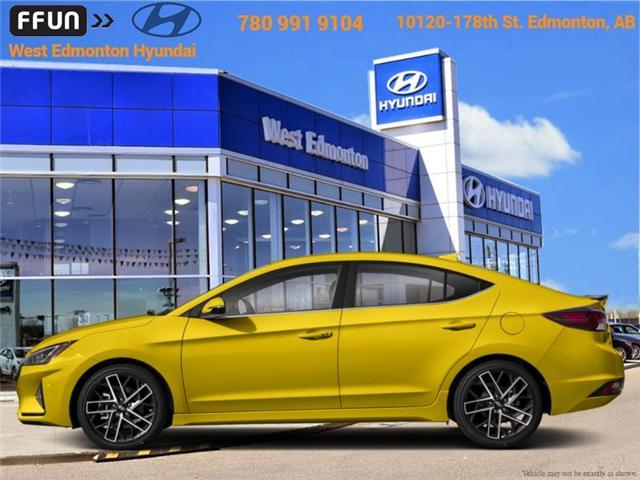 2019 Hyundai Elantra Sport (Stk: EL95915X) in Edmonton - Image 1 of 1
