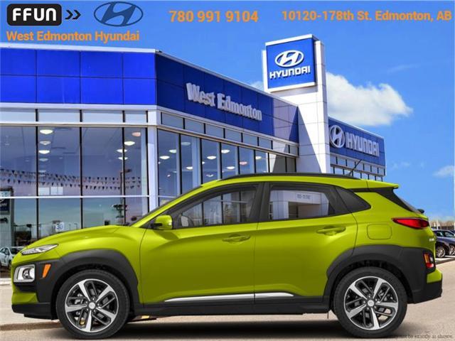 2019 Hyundai KONA 1.6T Trend (Stk: KN90634) in Edmonton - Image 1 of 1