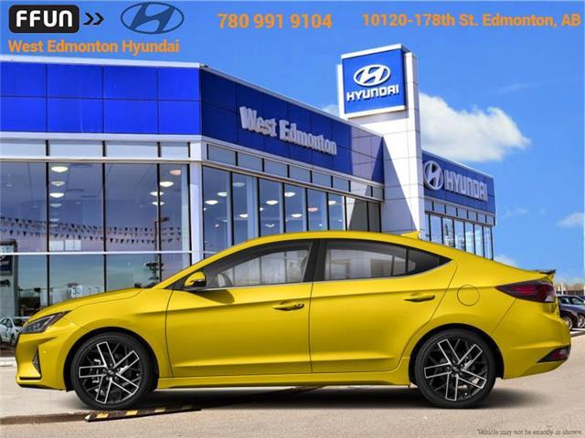 2019 Hyundai Elantra Sport (Stk: EL95985) in Edmonton - Image 1 of 1