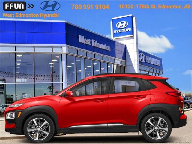 2019 Hyundai KONA SEL (Stk: KN90730) in Edmonton - Image 1 of 1
