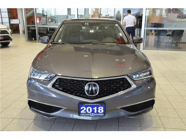 2018 Acura TLX Tech (Stk: 802955) in Milton - Image 2 of 40