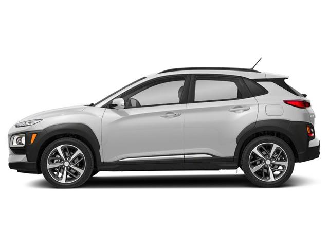 2019 Hyundai KONA  (Stk: 362279) in Whitby - Image 2 of 9