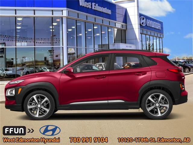 2019 Hyundai Kona 1.6T Trend (Stk: KN95599) in Edmonton - Image 1 of 1