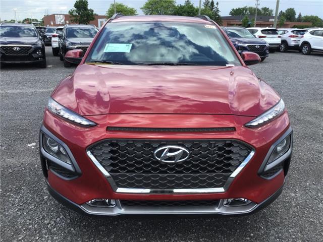 2019 Hyundai Kona 1.6T Trend (Stk: R96201) in Ottawa - Image 2 of 11