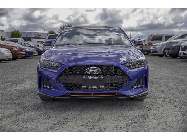 2020 Hyundai Veloster Turbo (Stk: LO021717) in Abbotsford - Image 2 of 28