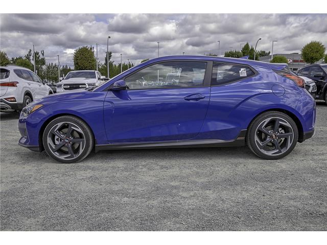 2020 Hyundai Veloster Turbo (Stk: LO021717) in Abbotsford - Image 4 of 28