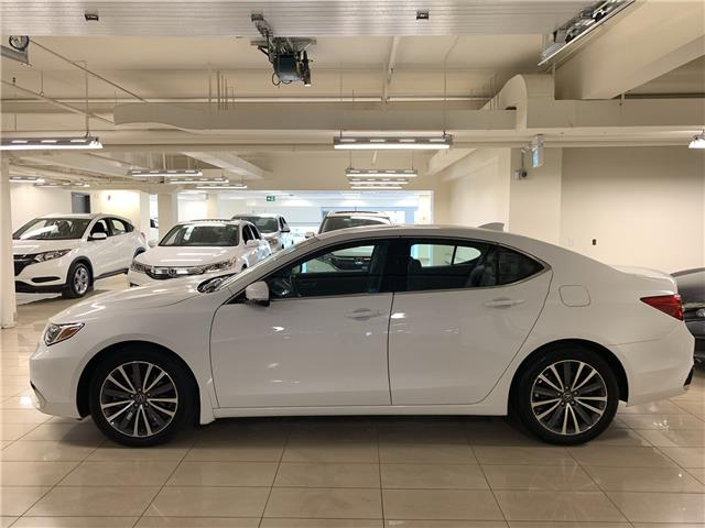 2018 Acura TLX Tech (Stk: D12456A) in Toronto - Image 2 of 31
