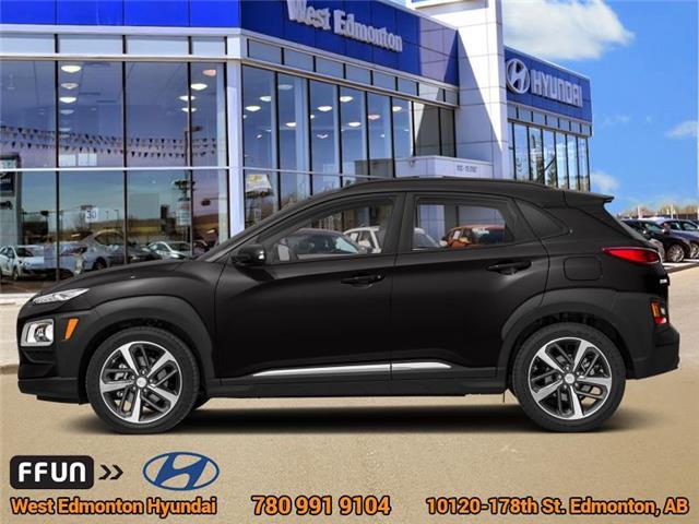 2019 Hyundai Kona 1.6T Ultimate (Stk: KN96115) in Edmonton - Image 1 of 1