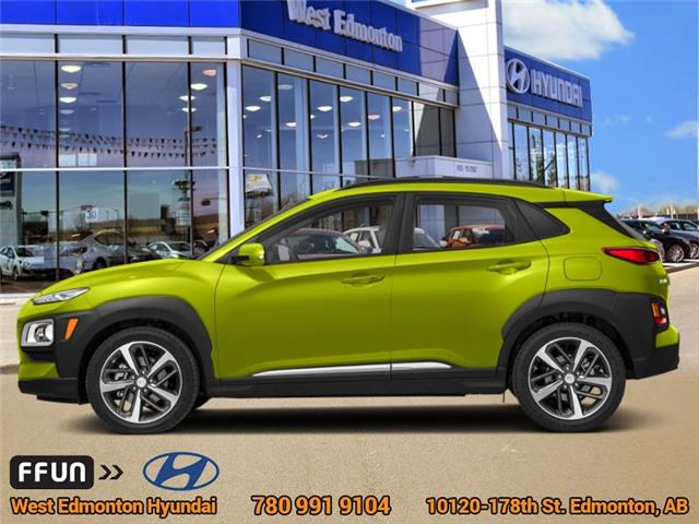 2019 Hyundai Kona 1.6T Trend (Stk: KN95118) in Edmonton - Image 1 of 1