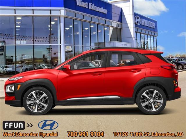 2019 Hyundai Kona 2.0L Preferred (Stk: KN93077) in Edmonton - Image 1 of 1