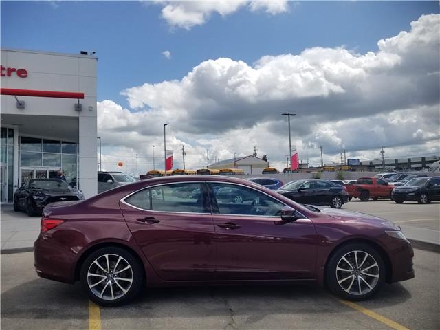 2016 Acura TLX Tech (Stk: U194239) in Calgary - Image 2 of 29